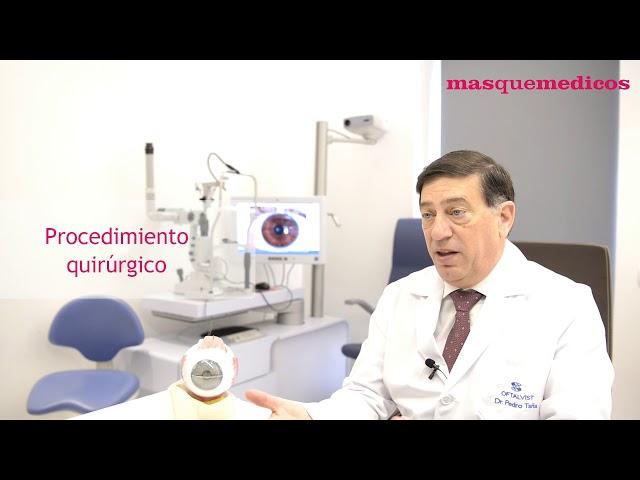 ¿Cómo se realiza la cirugía refractiva en Oftalvist? - Pedro Tañá Rivero