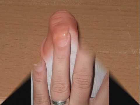 Wie die Nägel von slojenija der Nägel zu behandeln
