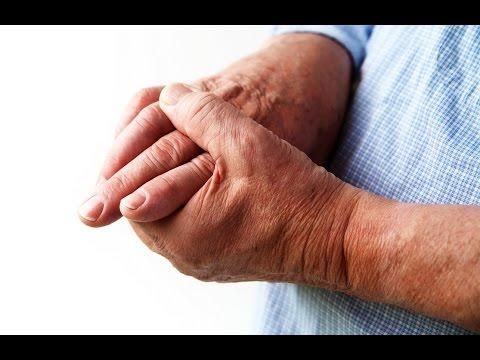 Лечение народным методом артроз