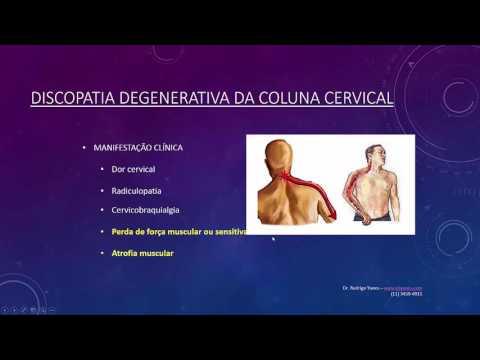 Massaggiatore contro osteocondrosi