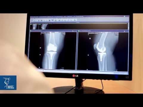 Cena za endoprotezoplastyce stawu kolanowego w Niemczech
