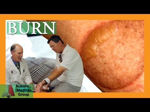 Video How to Treat a Second Degree Burn | Auburn Medical Group