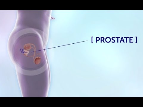 Laser prostate treatment reviews