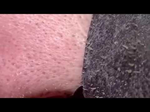 Siyah Nokta Temizleme Bandı Kullanan Adam - Black Acne Cleaning