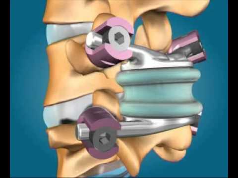 Wund Lymphknoten im Hals auf der linken Seite in den Erwachsenen erhöht