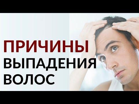 9 причин выпадения волос у мужчин | Способы остановить облысение