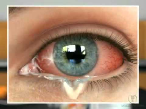 Мешок под одним глазом и болит
