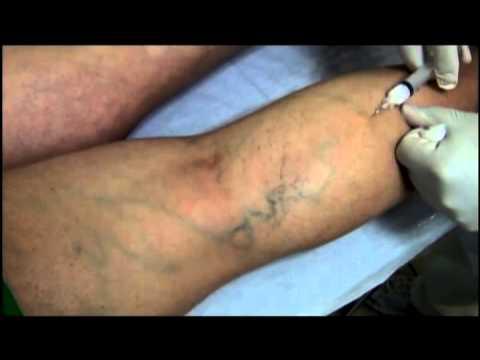 Eczema allergico diagnostics
