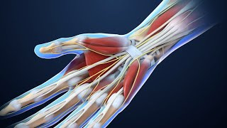 All You Need To Know About Carpal Tunnel Syndrome