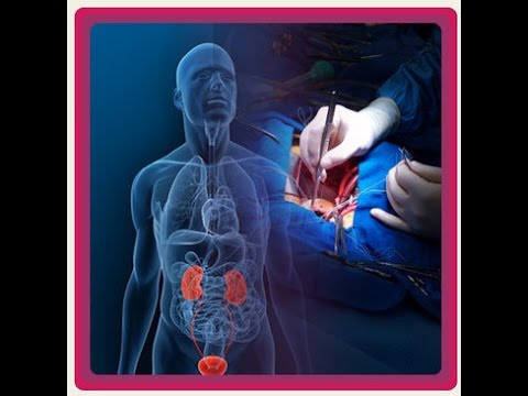 Where-Can-I-Have-Kidney-Transplant-in-India