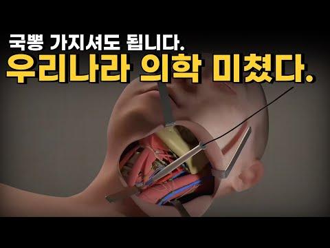 한국이 의학 세계 톱이라고요? 해외에서 굳이 수술받으러 찾아온다!