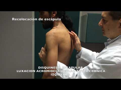 El tratamiento con ejercicios en la hernia intervertebral lumbar