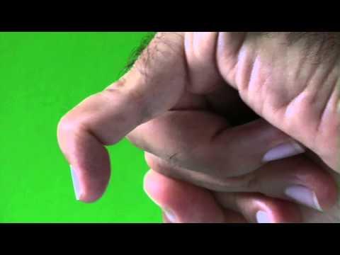 Deformazione delle articolazioni delle mani e dei piedi