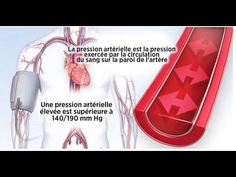Lhypertension et son traitement dans un hôpital