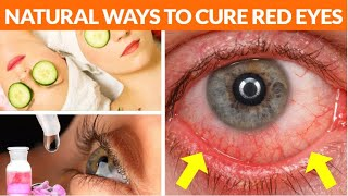 8 Natural Ways To Get Rid Of Redness in Eyes