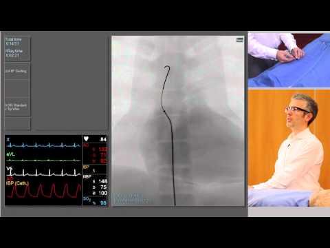 Angiografia tętnic wieńcowych- opis procedury