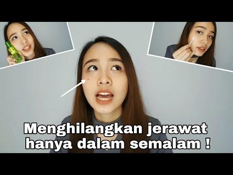 Video Cara Menghilangkan Jerawat Dalam Satu Malam ! + Ngobrol Soal Jerawat | Savira Millenita