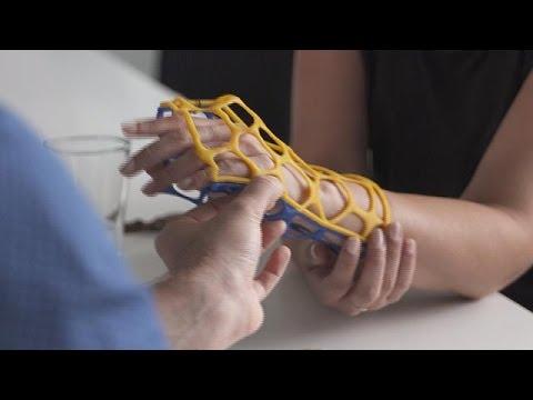 Bei Knochenbrüchen: 3D-Schiene statt Gips