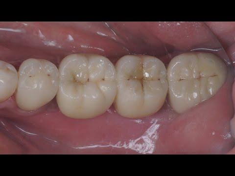Имплантация и протезирование боковых зубов. Часть 1. Хирургия