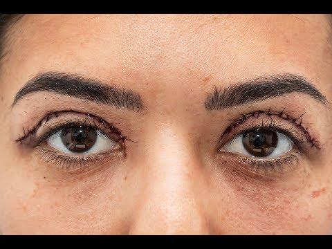 Tratament eficient al miopiei