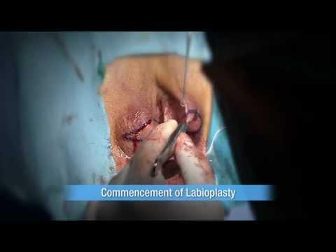 Labioplastyka