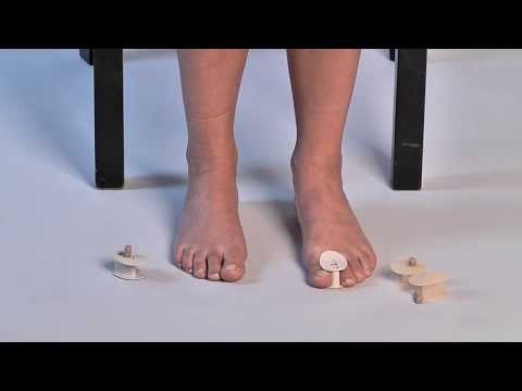 Ustawienie koślawe kolana i stopy