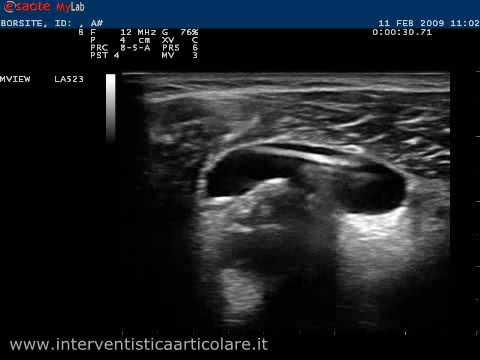 Infiammazione del periostio dei sintomi del ginocchio