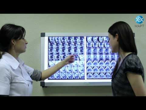 Упражнения при остеоартрозе плечевого сустава видео