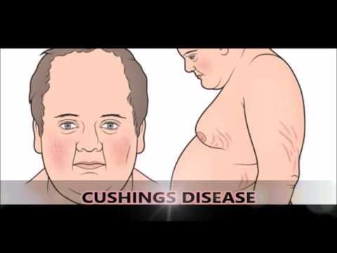 Hipertensión sistólica