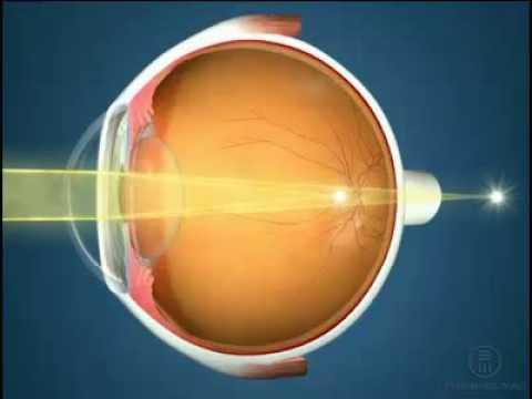 Почему при астигматизме нужно носить очки