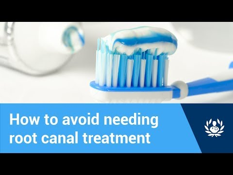 How to avoid needing root canal treatment (tips for healthy teeth)