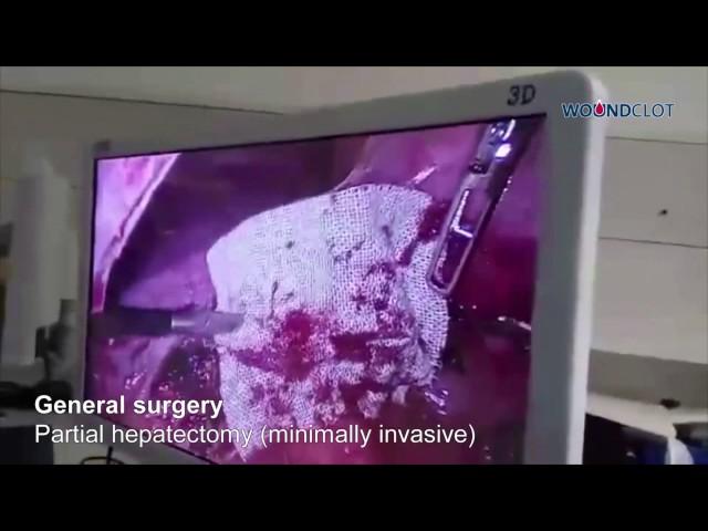 Minimal Invasive General Surgery