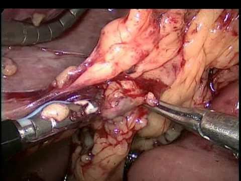 Conjunctival papilloma excision