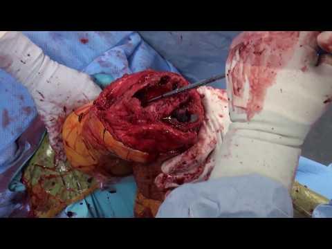 Seil mit einem zervikalen Osteochondrose
