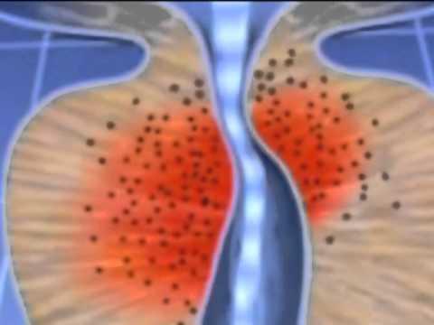 Восстановление потенции после операции рака предстательной железы