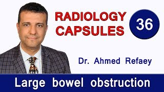 Capsule 36 : Large Bowel Obstruction