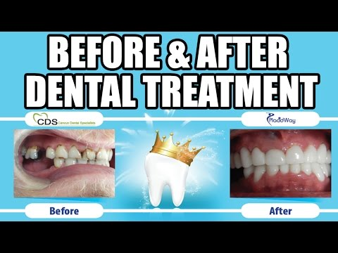 Dental Implants and Dental Veneers in Cancun Mexico