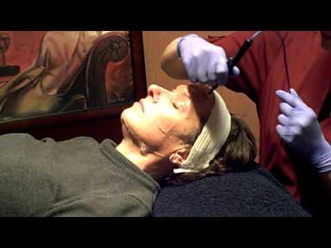 Pagpapaliwanag sa facials mula sa mga bakas ng acne sa mukha