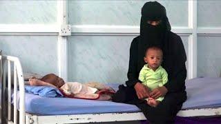 Yémen: des enfants malnutris soignés dans un hôpital à Hodeïda