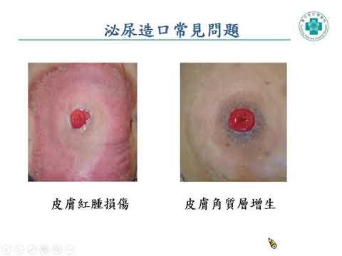 泌尿造口照護(黃淑玲 專科護理師)