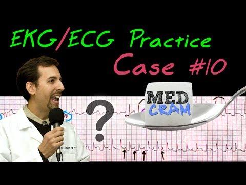 12 Lead ECG Practice Strip Interpretation - EKG Case 10 - YouTube