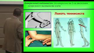 Хитров Н.А., Сёмочкина Е.Н., Фибромиалгия и периартриты: параллели и взаимосвязь.