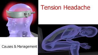 Tension Headache | Causes and simple solutions