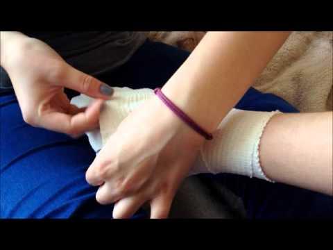 Metody leczenia Varix