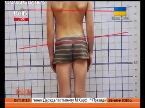 Детская ортопедическая клиника искривление позвоночника в самаре