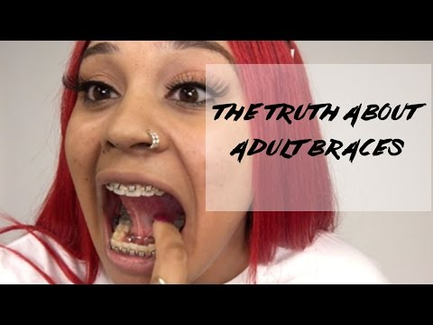 The Truth About Adult Braces Rant: My Experience with Western Dental