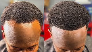 HOW TO FIX A BALDING RECEDING HAIRLINE | PERFECT HAIRCUT FIX