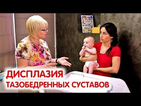 Дисплазия тазобедренных суставов у детей. Гимнастика для грудничков | Педиатр про здоровье детей