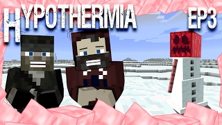 Heating Up the Sieves | Hypothermia w/ Modi101 | Ep.3