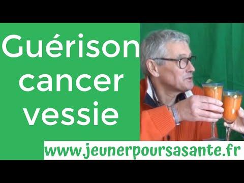 Cancer de la prostate momie